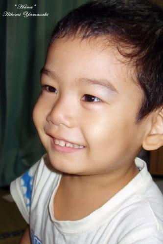 小児白血病の初期症状 顔面蒼白・出血斑・発熱