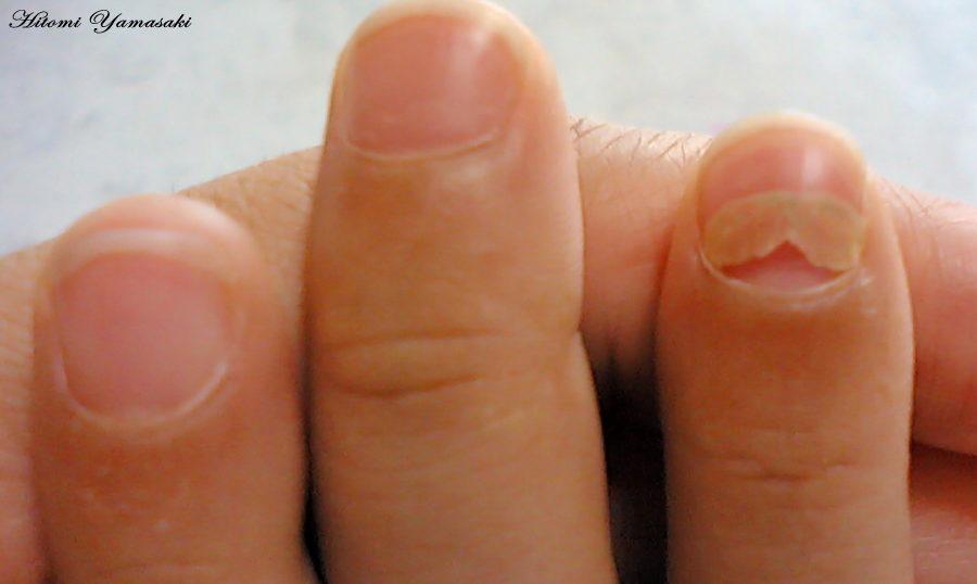 抗がん剤の影響で爪が剥がれかける
