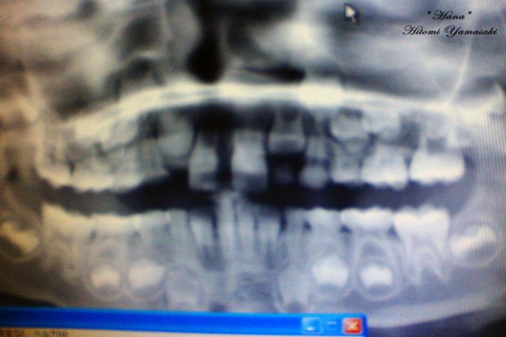 歯の生え変わり 乳歯と歯茎の中で眠る永久歯