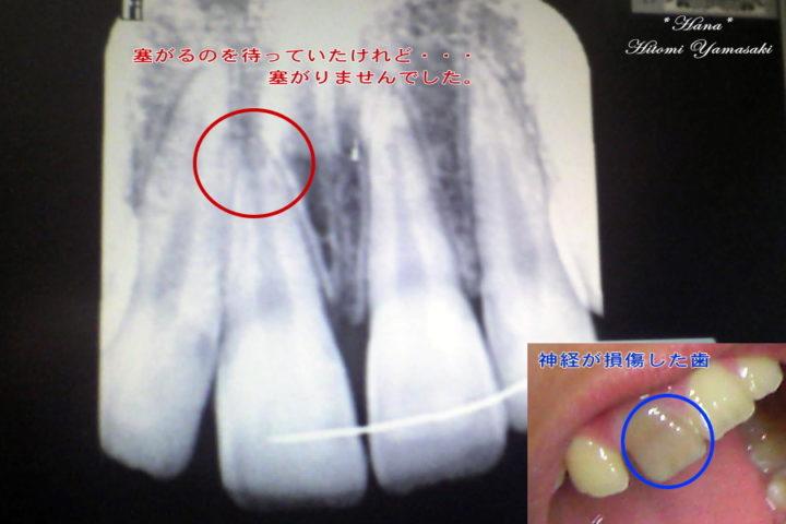 前歯を強打して神経が死んだレントゲン画像